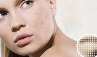 What's the Best Melasma Treatment Creams, help to Remove Dark Spots effectively?